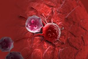 Медики назвали четыре профессии, вызывающие развитие рака