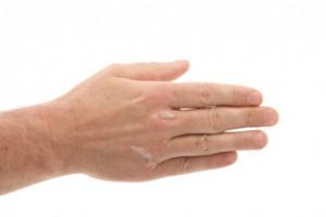 Псориаз может быть предупреждающим знаком проблем с сердцем