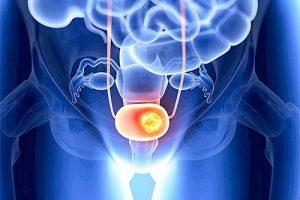 Новый препарат для лечения рака мочевого пузыря разрешен к использованию