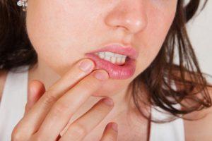 Факторы, которые способны спровоцировать появление герпеса на лице