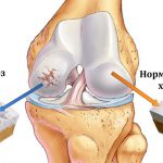 Болят колени? Причиной может быть - артроз коленного сустава! Узнайте как его лечить?