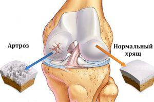 Болят колени? Причиной может быть — артроз коленного сустава! Узнайте как его лечить?