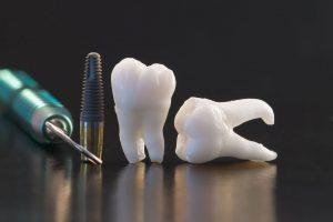 Чужой среди своих: вылечить зуб или удалить его и поставить имплант?