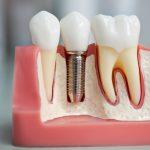 Базальная имплантация зубов - эффективная процедура по доступным ценам