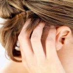 Сухая перхоть, причины появления, лечение, возможные последствия
