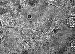 Крутящаяся молекула измерила натяжение клеточной мембраны