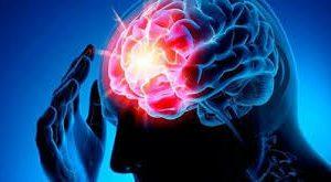 Отсутствие одного гена может помочь восстановиться после инсульта