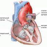 Робокатетер научился искать сердечные клапаны на ощупь