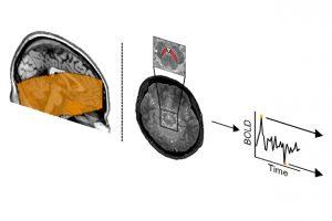 Колебания работы дофамина повлияли на принятие рискованных решений