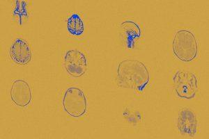 Контроль кровяного давления обеспечил здоровье мозга
