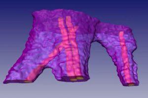 В МФТИ исследовали нанокаркас для «заплаток» на сердце