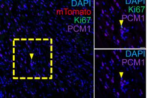 Лечебное действие стволовых клеток на сердце объяснили воспалением