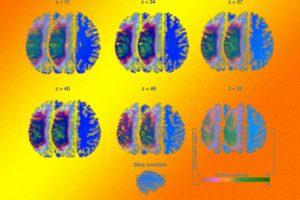 Префронтальная и задняя теменная кора дополнили соматосенсорную систему мозга