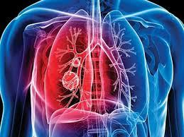 Отечественные химики подошли ближе к избавлению от туберкулеза
