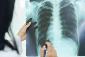 Как сделать рентген в ГКБ № 13: нюансы подготовки к процедуре