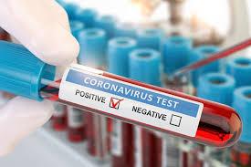 Бессимптомные носители коронавируса редко заражают окружающих