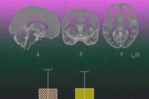 Функциональные связи мозга не дали развиться наркозависимости