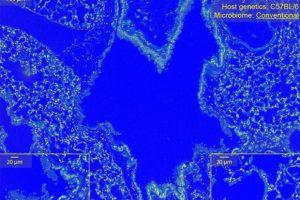 Аэробные бактерии повредили легкие при кислородном отравлении
