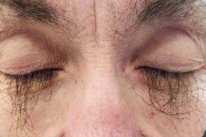Противоопухолевый препарат вызвал у женщины чрезмерный рост ресниц