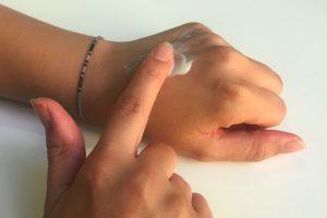 Зуд и красные пятна: как отличить крапивницу от псориаза?