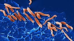 Антихеликобактерная терапия может снизить риск рака желудка на многие годы