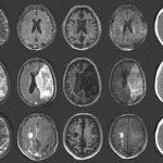 Нейросеть распознала гидроцефалию на МРТ