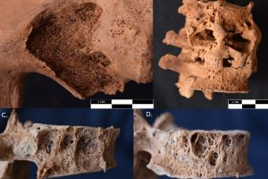 Индейцы ичсма пострадали от респираторных заболеваний в доинкский период