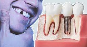 Что делать, лишившись зуба?