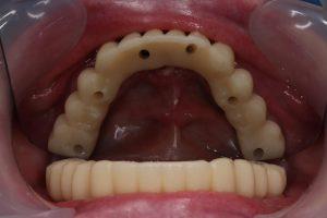 Кому рекомендовано протезирование зубов на имплантах